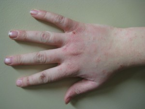 probleme de peau avec le nickel