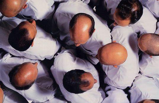 Focus sur la micro greffe de cheveux : prix, interventions, résultats
